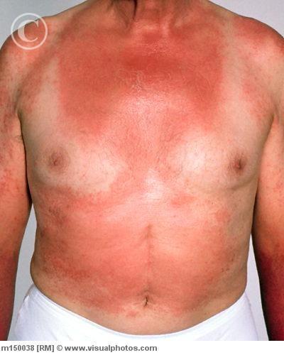 """Bệnh eczema khiến nam giới tăng nguy cơ """"bất lực"""""""