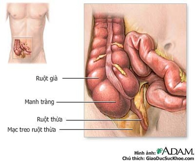 Kháng sinh an toàn và hiệu quả để điều trị viêm ruột thừa