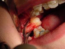 """Nhổ sạch răng người yêu sau khi bị """"đá"""""""