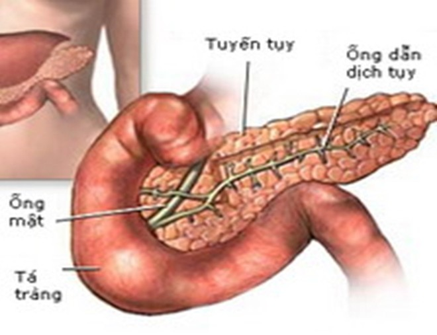 Phát hiện thuốc đích đối với viêm tụy cấp