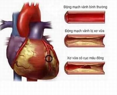 Hóa chất trong sản phẩm gia dụng gây nguy cơ bệnh tim