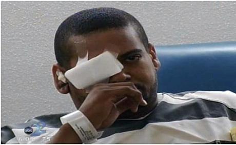 """""""Dê xồm"""" bị bắn thủng mắt khi giở trò ảnh 1"""