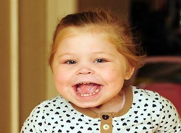 """Hạnh phúc đến với em bé có cái lưỡi """"khổng lồ"""" ảnh 2"""