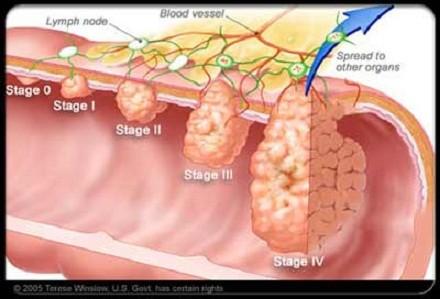 Quy tắc giảm nguy cơ ung thư đại trực tràng ảnh 1