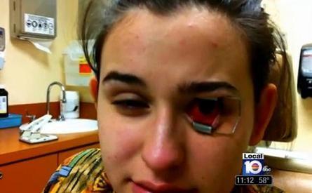 Cô gái 18 tuổi suýt bị mù mắt vì kính áp tròng ảnh 2