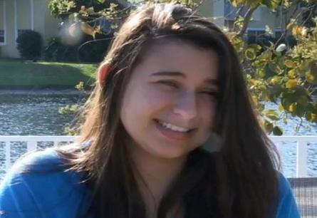 Cô gái 18 tuổi suýt bị mù mắt vì kính áp tròng ảnh 1