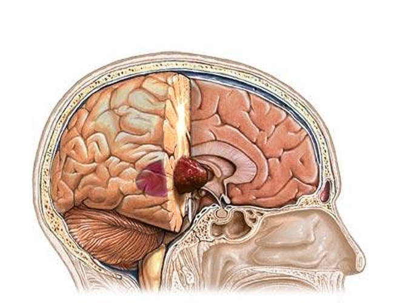 Nhận diện các triệu chứng ung thư não ảnh 1