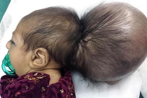 Bé gái hai đầu được phẫu thuật thành công ảnh 1