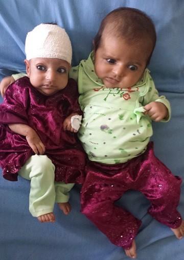 Bé gái hai đầu được phẫu thuật thành công ảnh 2