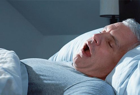 Ngáy có gây đau tim? ảnh 1