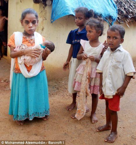 Người phụ nữ bé nhất Ấn độ sinh con ảnh 1