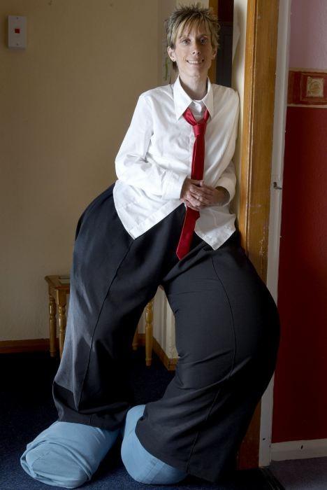 Người phụ nữ có đôi chân khổng lồ nặng hơn 60 cân ảnh 1