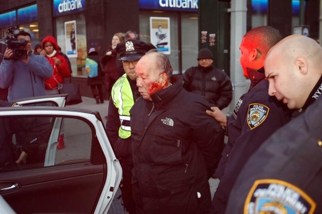 Cảnh sát Mỹ đánh ông cụ 84 tuổi nhập viện, vì sang đường sai luật ảnh 1