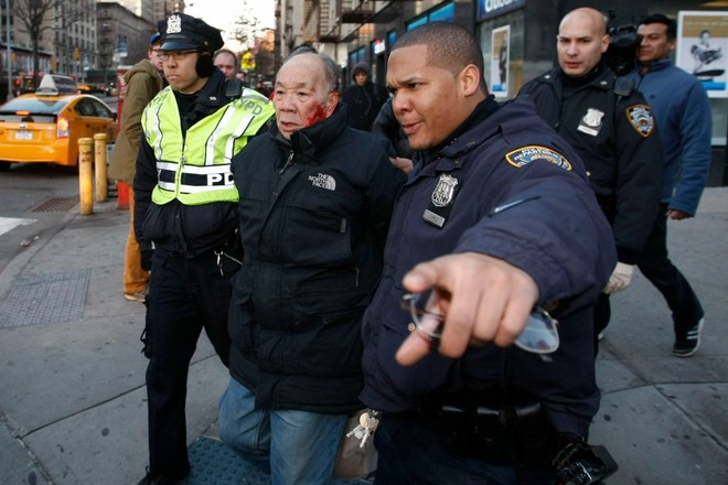 Cảnh sát Mỹ đánh ông cụ 84 tuổi nhập viện, vì sang đường sai luật ảnh 2
