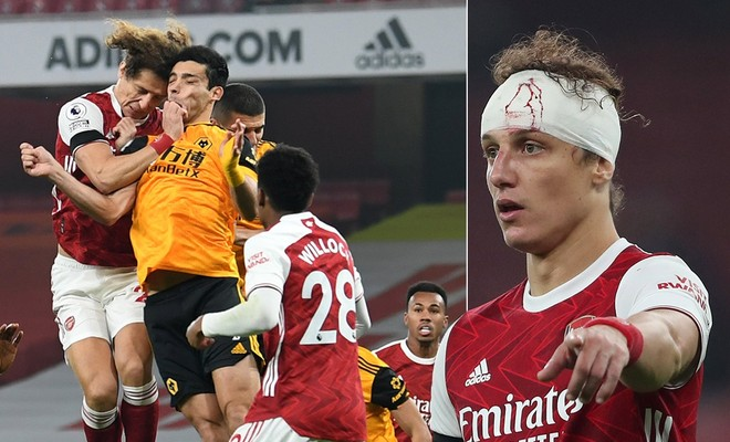 David Luiz khiến đối phương nứt hộp sọ sau pha va chạm kinh hoàng ảnh 1