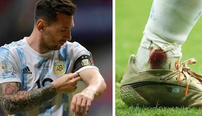 Sốc với hình ảnh cổ chân chảy máu của Messi ở bán kết Copa America ảnh 1