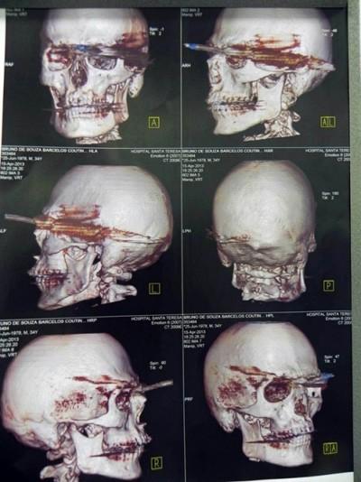 Hình ảnh chụp X-quang nạn nhân