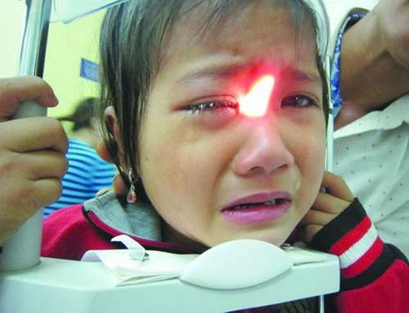 Nguy cơ mù mắt từ nhầm lẫn bệnh viêm cầu nhãn với đau mắt đỏ ảnh 1