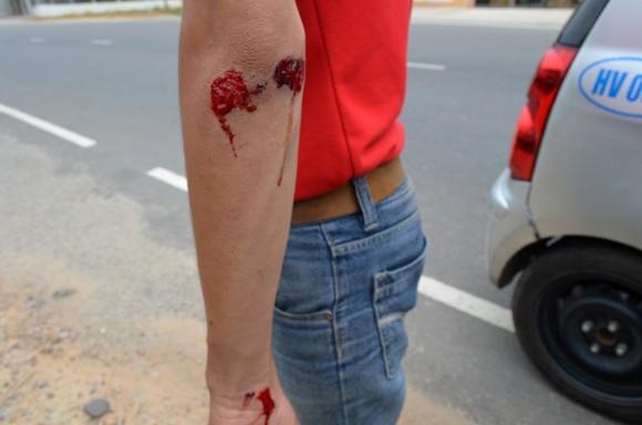 4 phóng viên bị côn đồ tấn công khi đang tác nghiệp ảnh 1