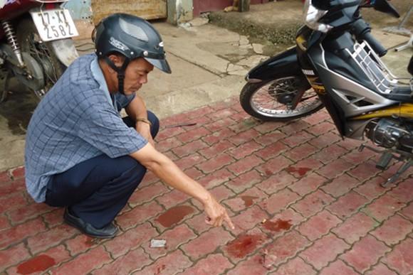 Một thanh niên bị đâm trúng tim, ngã gục trên vỉa hè ảnh 1