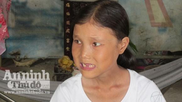 Khổ hạnh cô gái 25 tuổi rụng răng, nhăn nheo như bà lão ảnh 1