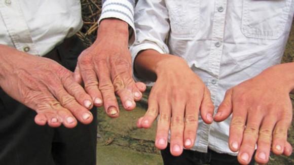 Giải mã những bàn tay 6 ngón ảnh 1