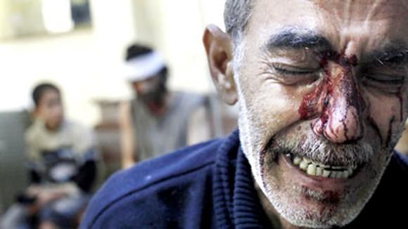 Syria - Chiến trường không thể kiểm soát ảnh 1