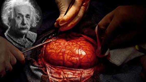 Chuyện lạ có thật về bộ não con người ảnh 1