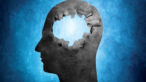Chuyện lạ có thật về bộ não con người ảnh 3