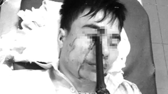 Phẫu thuật thành công cho người cầm ô đi xe bị cán gương đâm xuyên hốc mắt ảnh 1