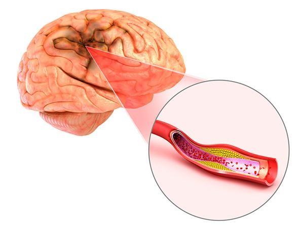 Đột quỵ não và vai trò của chụp cộng hưởng từ (MRI) trong tầm soát đột quỵ ảnh 1