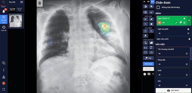"""Bảo vệ """"thành trì"""" chống dịch COVID-19 bằng đẩy mạnh ứng dụng AI trong y tế ảnh 1"""