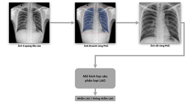VinBrain và FIT phát hành sách trắng về ứng dụng trí tuệ nhân tạo cho chẩn đoán và tầm soát bệnh lao ảnh 1