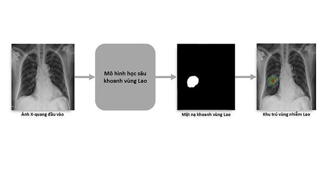 VinBrain và FIT phát hành sách trắng về ứng dụng trí tuệ nhân tạo cho chẩn đoán và tầm soát bệnh lao ảnh 2