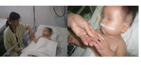 Chọc vào ổ điện, bé 11 tháng tuổi bị cháy tay ảnh 1