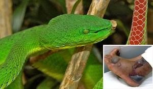 Bị rắn lục rắn, bé 9 tuổi bị rối loạn đông máu toàn thân ảnh 1