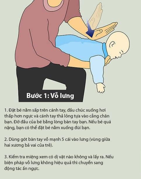 Báo động tình trạng hóc dị vật ở trẻ em ảnh 3