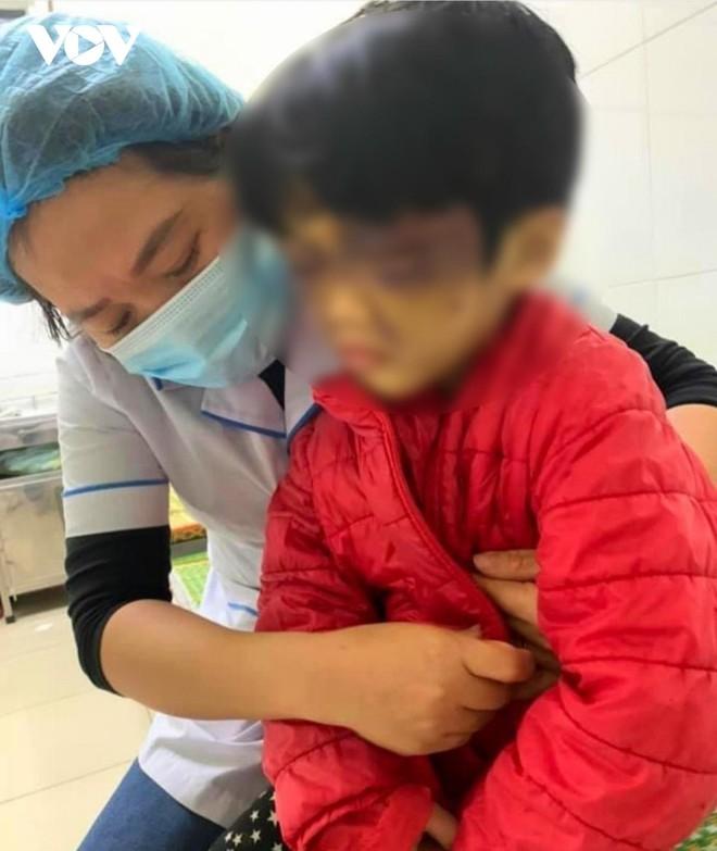 [Tin nhanh sáng 6-4-2021] Khởi tố người mẹ hành hạ dã man con đẻ ảnh 1